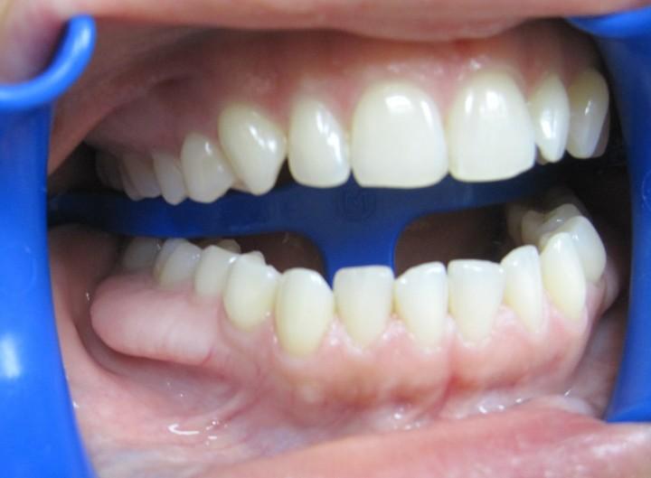 Fájdalommentes Led lámpás fogfehérítés a Swiss Dentalnál