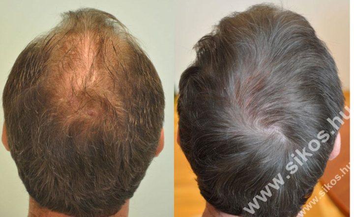 Milyen tényezők befolyásolják a hajbeültetés eredményességét?