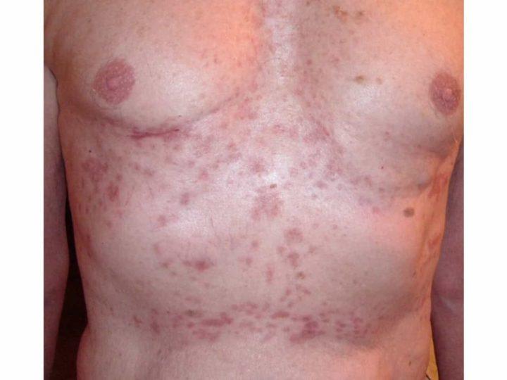 A bőrrák jelei nem szűnnek meg