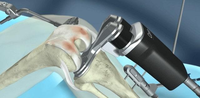 robot asszisztált térdprotézis műtét